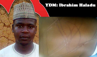 Ibrahim Haladu and the injuries he caused to his 14-month-old daughter